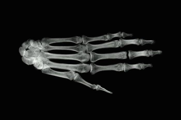 Main Hand Image